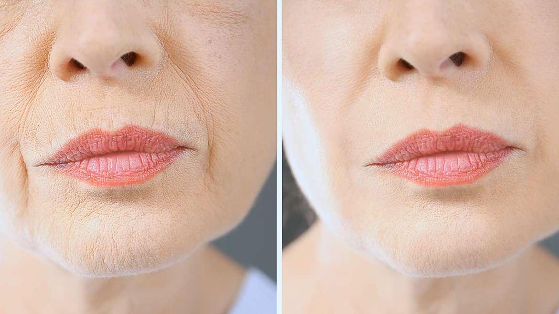 Advanced resurfacing kůže s příznaky stárnutí