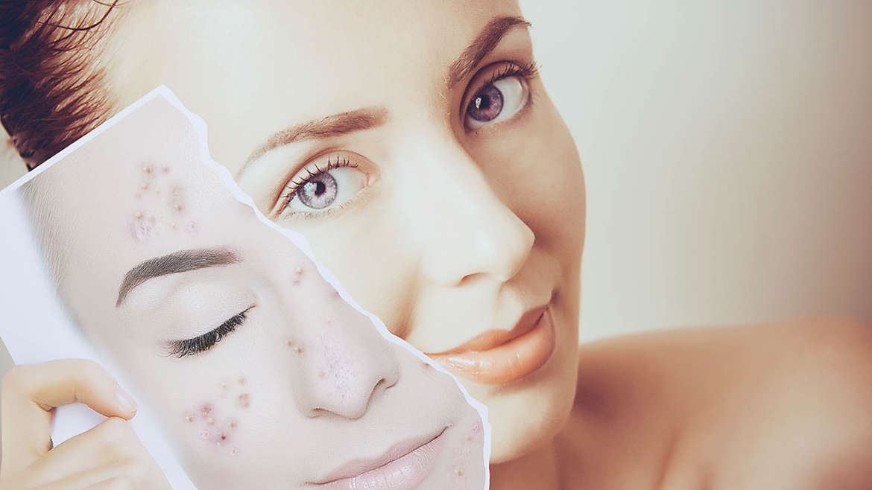 Clarifying – mastná a aknózní kůže