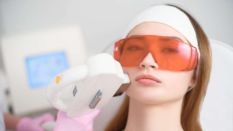 Léčba akné  Laser IPL