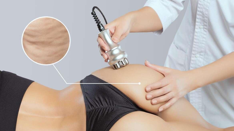 Vakuová RF masáž